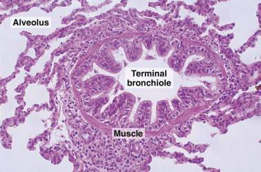 Bronchioles definition location anatomy function diagram the terminal bronchiole histology ccuart Gallery